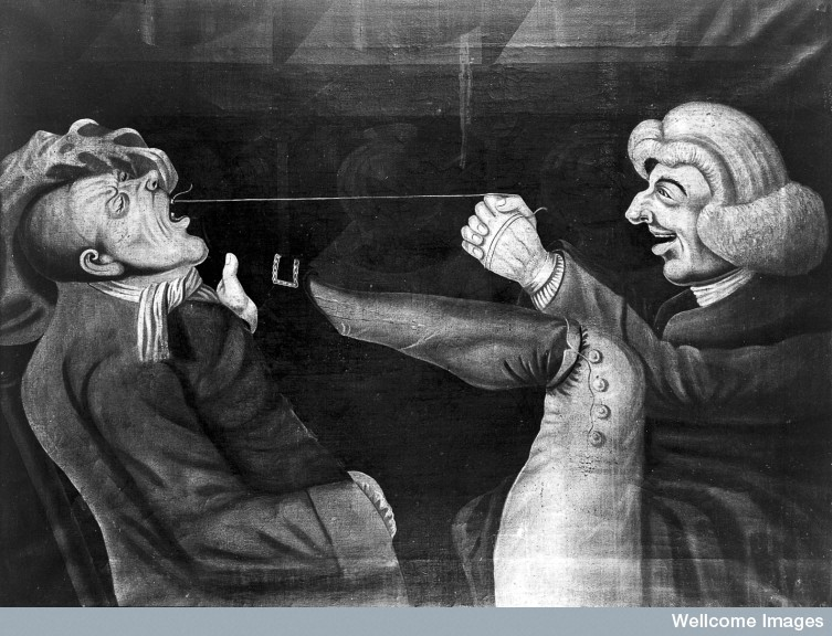 The Rotten Tooth: A Brief History of Dentistry « The Chirurgeon's ...