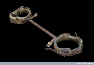 Clover's lithotomy crutch, London, England, 1860-1904