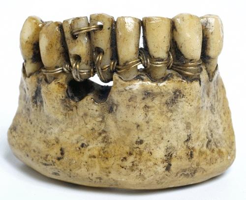 Лечение гранулемы зуба боль