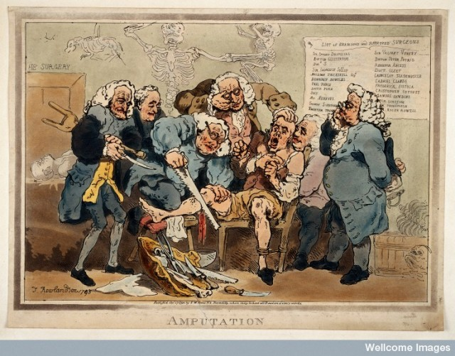 L0034242 Five surgeons participating in the amputation